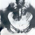 (7) Pathologie eines Kannibalen