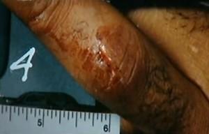 OJ Simpson - Verletzung Mittelfinger