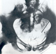Albert Fish - Nadeln - Röntgenbild